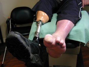 Recovering Damages For Amputation Injuries